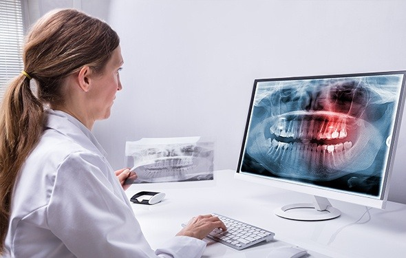 Digital dental x-rays on computer screen