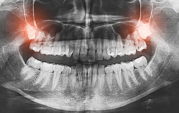 X-ray of impacted wisdom teeth
